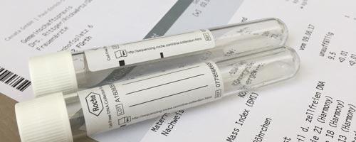 NIPD (mütterlicher Bluttest)